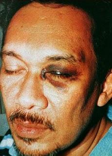 Image result for images of anwar black eye